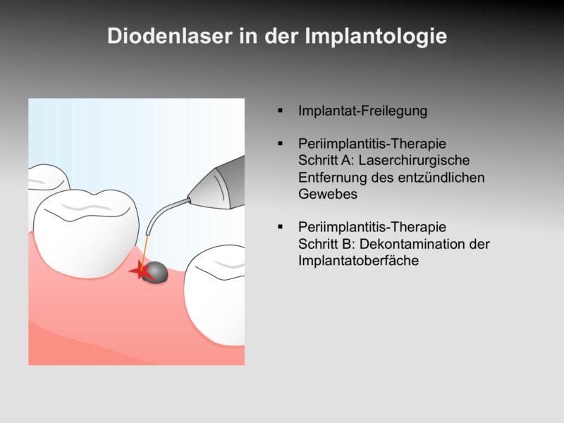 wkdl_de_08_implant_0