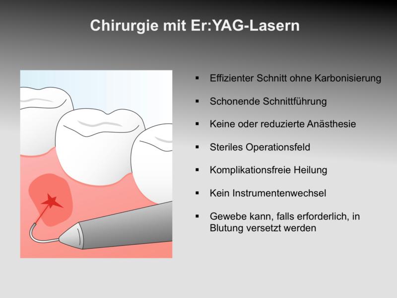 wkdl_de_16_eryagchirurgie_0